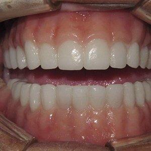 dentate surgery