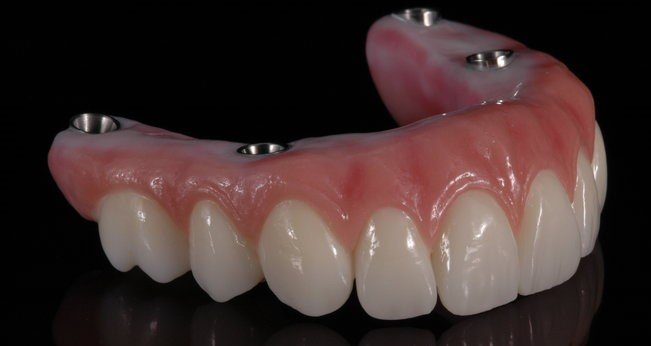 Dental Implant Hybrid Fixed