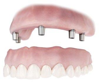 ROE Dental Lab Conus Overdenture