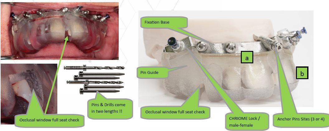 CHROME dentate surgery